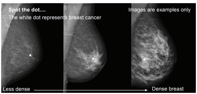 Breastscreen Wa